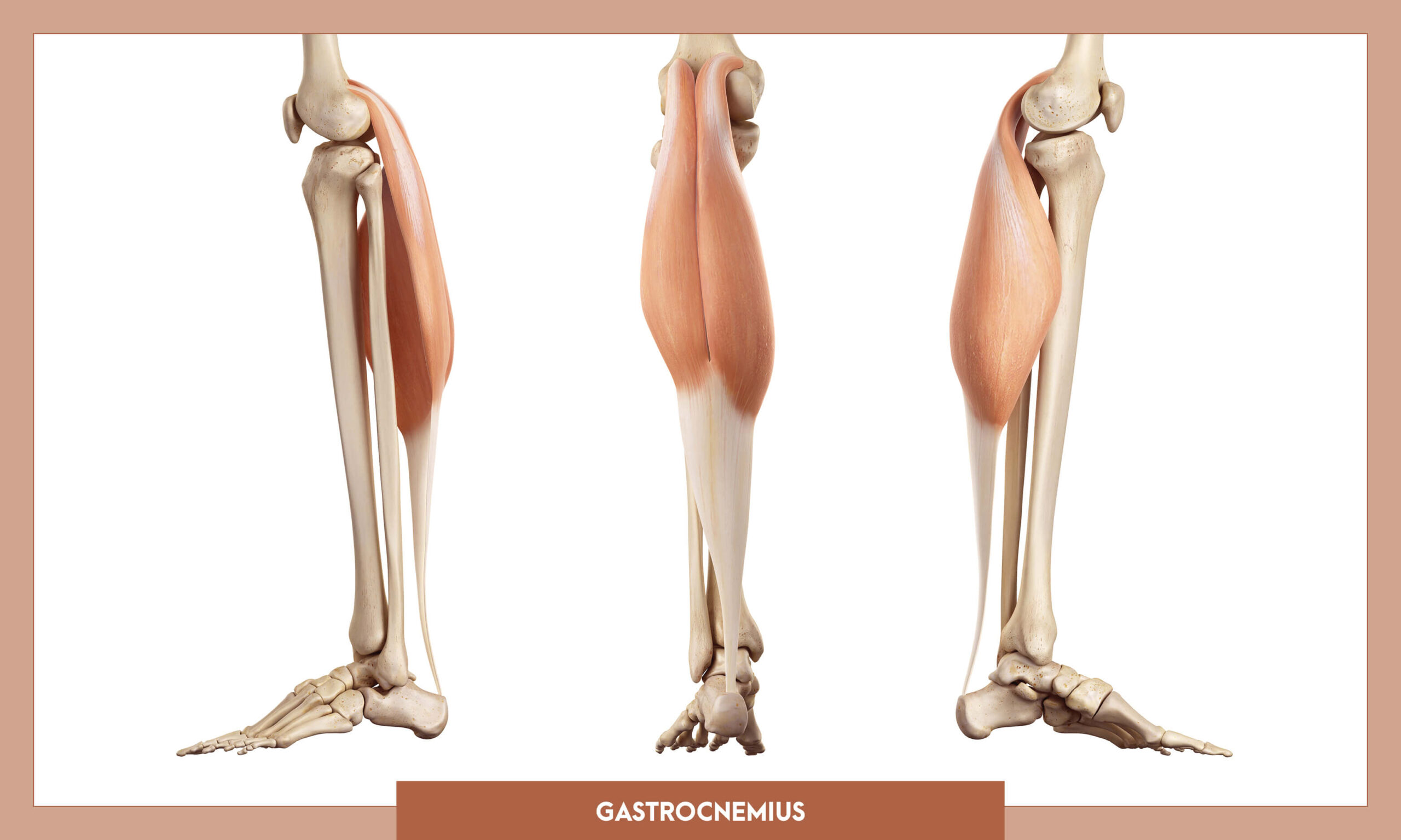 Muscles of thee Lower Limb - Gastrocnemius